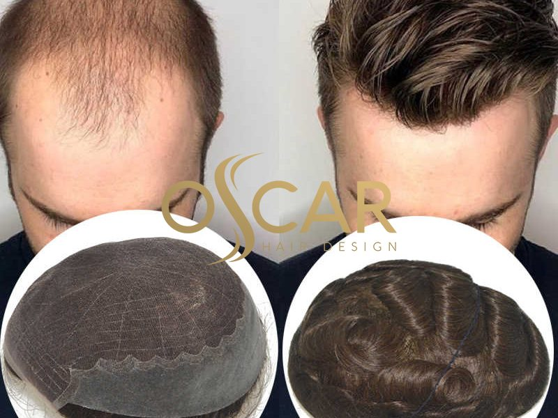 Yeni Nesil Protez Saç Tedavisini Oscar Hair Protez Saç Merkeziyle Görün
